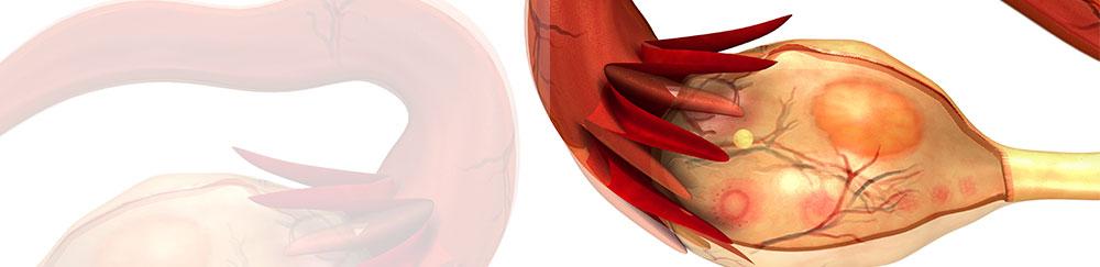 Ovario poliquístico en Cali